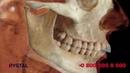 Блокадная анестезия верхней челюсти от CRYSTAL farma