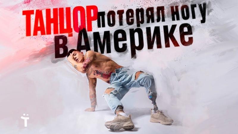 Танцор потерял ногу в Америке Вдохновляющая история Димы Кима
