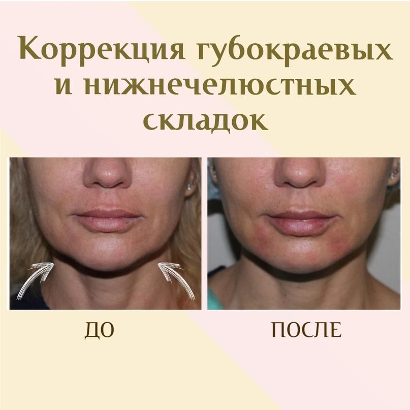 Коррекция в зоне нижней челюсти., изображение №14