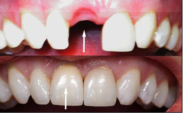 имплант переднего зуба за и против