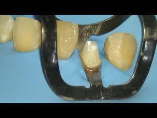 Шок! что они сделали с безнадёжным зубом!!!