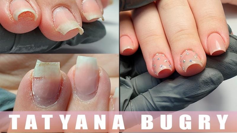 Исправляю Скрученные Ногти Коррекция СЛОЖНЫХ Ногтей Татьяна Бугрий
