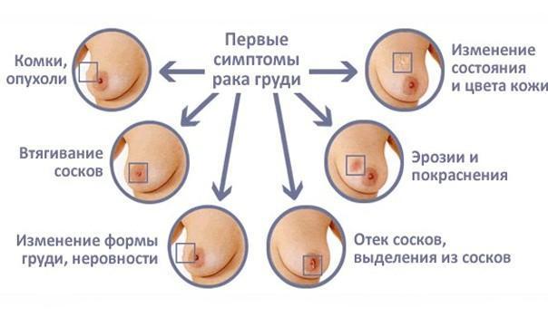 Онколог — маммолог. Своевременное обследование сохранит здоровье и жизнь., изображение №1