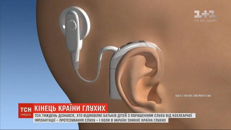Хто відмовляє батьків дітей з порушенням слуху від кохлеарної імплантації